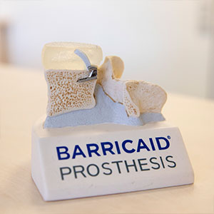 Barricaid Prothesis